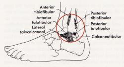 Ankle Ligament picture used from Arnheim's Principles of Athletic Training