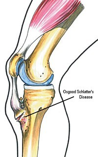 Osgood Schlatters Disease image from Clinical Guide to Sports Injuries