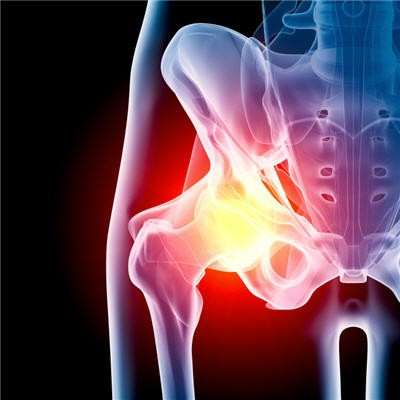 What Causes Piriformis Syndrome and Hip Pain