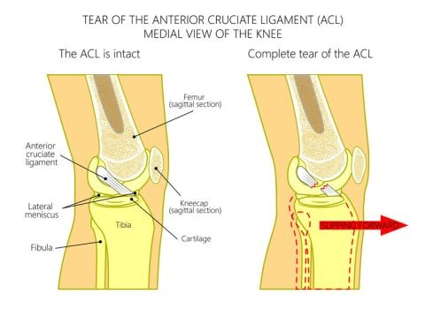 Anterior Cruciate Ligament (ACL) Anatomy