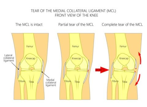 Medial Collateral Ligament (MCL) Anatomy