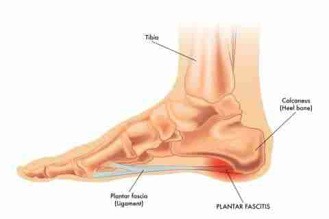 Plantar fasciits anatomy
