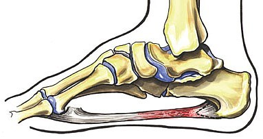 Plantar Fasciits image from Clinical Guide to Sports Injuries