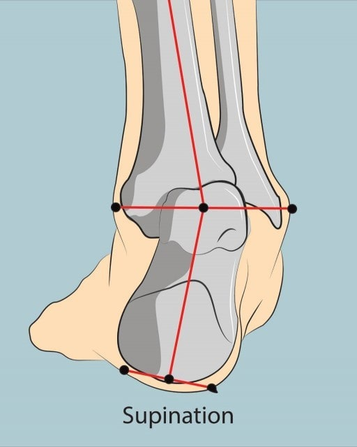 Right foot supination or rolling outwardly