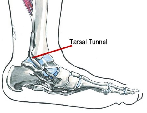 Tarsal Tunnel Syndrome image from Clinical Guide to Sports Injuries