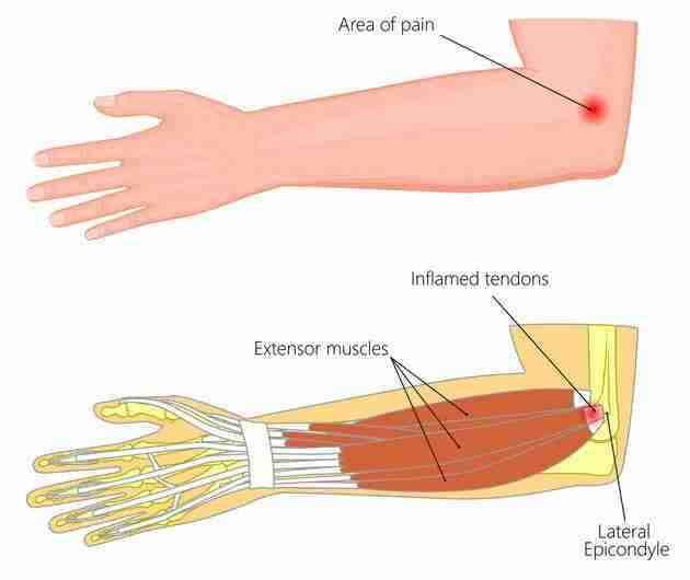 Tennis Elbow Muscle Anatomy